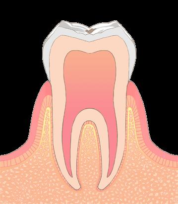 おさふねフレンド歯科 C0(脱灰)