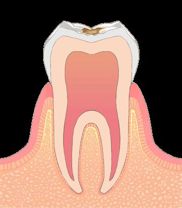 おさふねフレンド歯科 C1(エナメル質の虫歯)