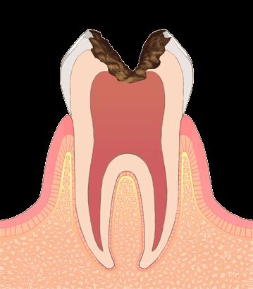 おさふねフレンド歯科 C3(神経まで進行した虫歯)
