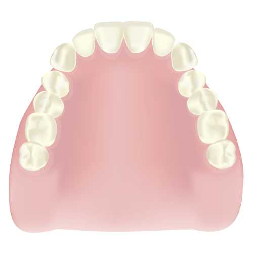岡山県瀬戸内市内の歯医者 おさふねフレンド歯科 義歯・入れ歯 レジン床義歯