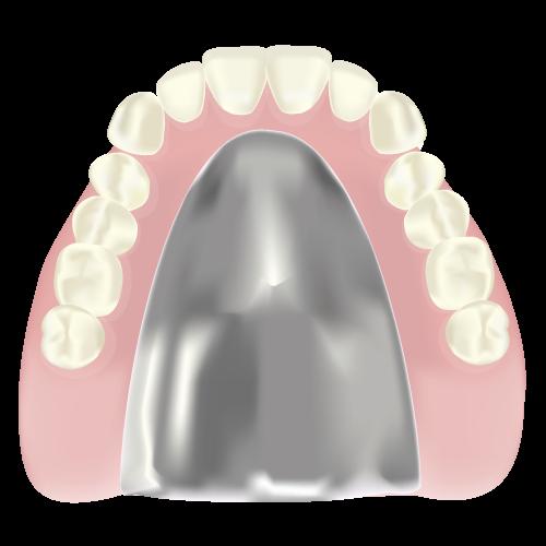 岡山県瀬戸内市内の歯医者 おさふねフレンド歯科 義歯・入れ歯 金属床義歯