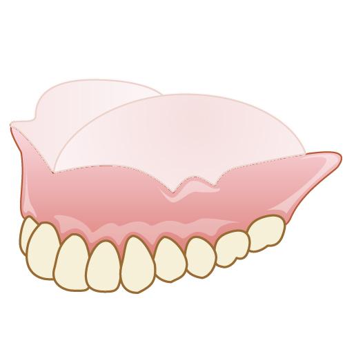 岡山県瀬戸内市内の歯医者 おさふねフレンド歯科 義歯・入れ歯 コンフォート加工の入れ歯