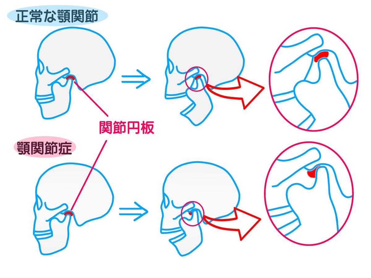 岡山県瀬戸内市内の歯医者 おさふねフレンド歯科 顎関節症