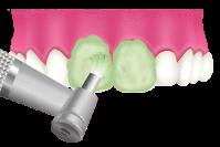 岡山県瀬戸内市内の歯医者 おさふねフレンド歯科 PMTC 仕上げのフッ素コーティング