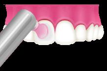 岡山県瀬戸内市内の歯医者 おさふねフレンド歯科 PMTC 歯面の磨き上げ(ポリッシング)