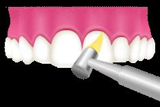 岡山県瀬戸内市内の歯医者 おさふねフレンド歯科 PMTC 歯面と歯の隙間の清掃