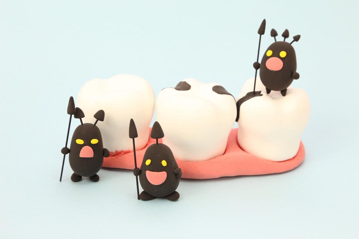 おさふねフレンド歯科 虫歯