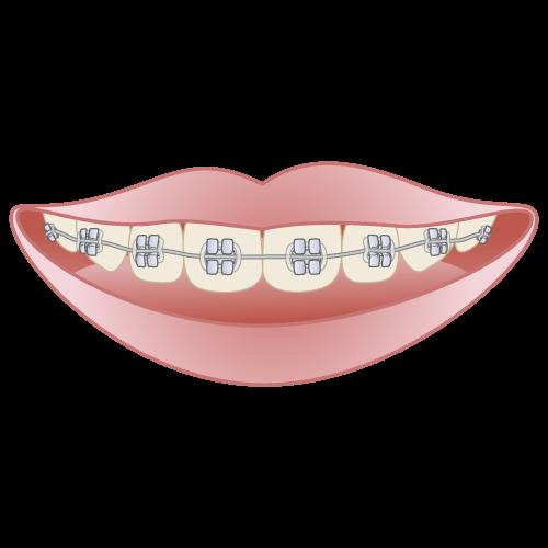 岡山県瀬戸内市内の歯医者 おさふねフレンド歯科 矯正 メタルブラケット