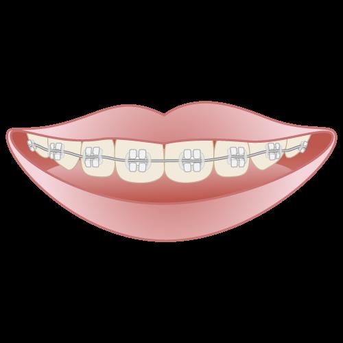 岡山県瀬戸内市内の歯医者 おさふねフレンド歯科 矯正 セラミックブラケット