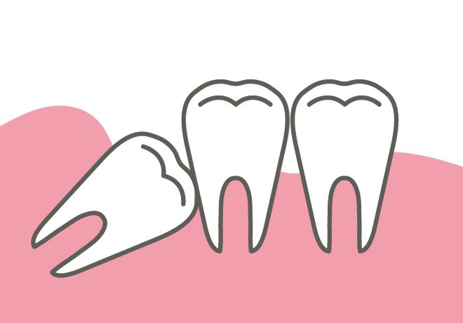 岡山県瀬戸内市内の歯医者 おさふねフレンド歯科 親知らずの治療