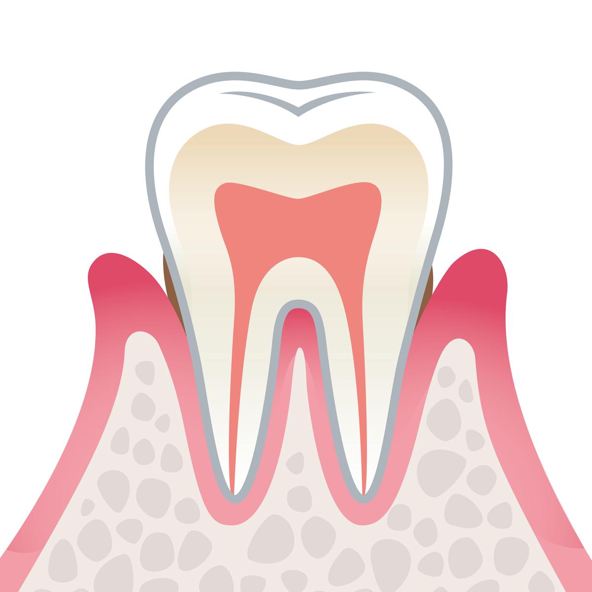 岡山県瀬戸内市内の歯医者 おさふねフレンド歯科 歯周病 軽度歯周病